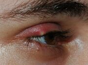 Stye02