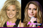Ashley-tisdale-new-nose-001