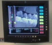 Dental xray