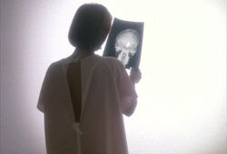 Scully tumor x-ray light Memento Mori