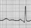 Electrocardiogram